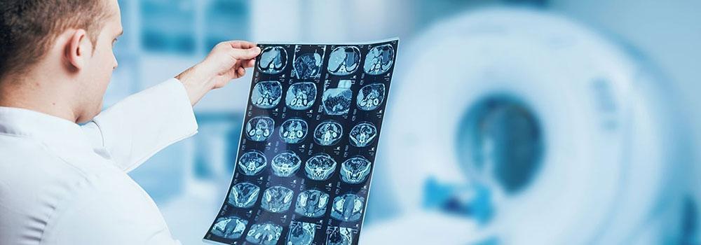 PACS-Radiology-on-TopLineBlog